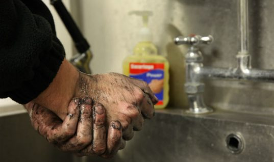 Using the wrong hand cleaner can result in painful skin conditions says Swarfega