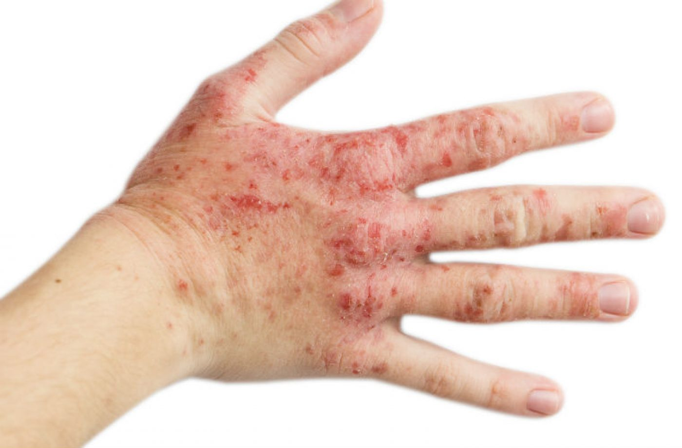 Disposable gloves could cause more harm than good, say experts