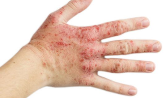 Four workshop contaminants to avoid direct skin contact with