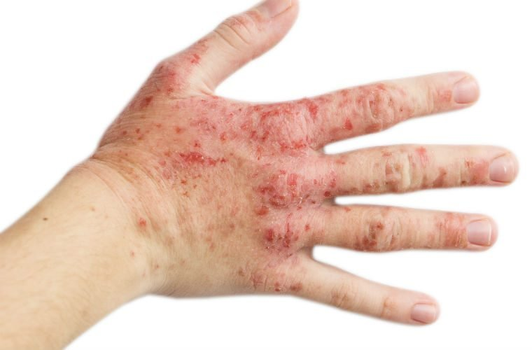 Work-related skin problems continuously underestimated, non-profit suggests